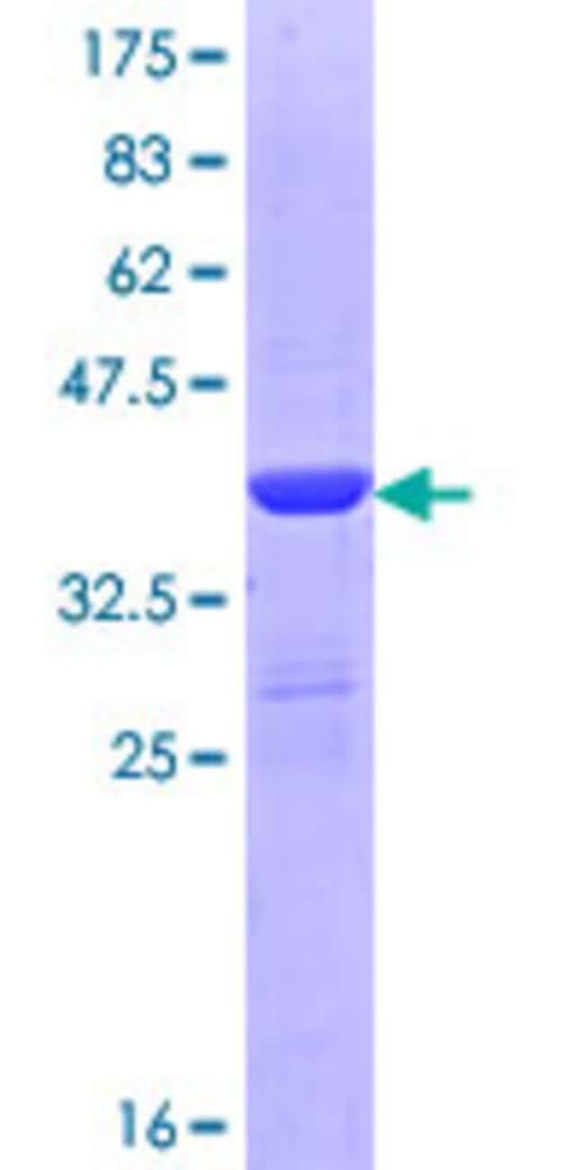 AbnovaHuman DMGDH Partial ORF (NP_037523.2, 556 a.a. - 665 a.a.) Recombinant