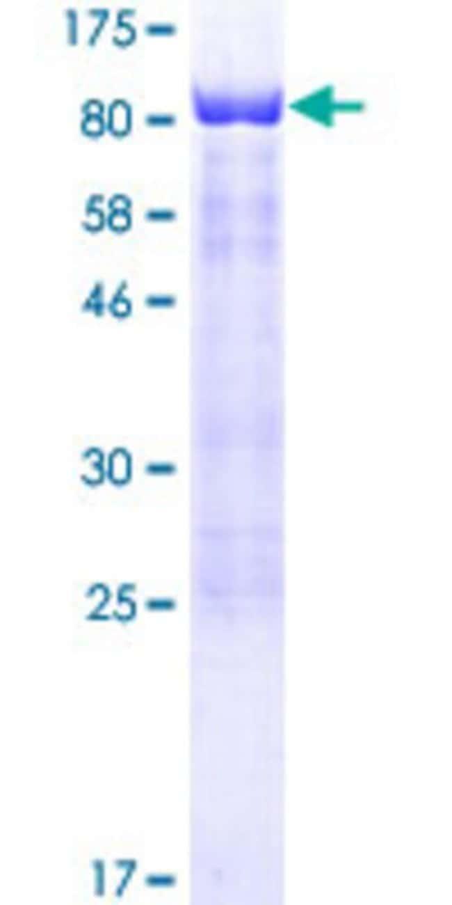 AbnovaHuman SCHIP1 Full-length ORF (AAH36535.1, 1 a.a. - 486 a.a.) Recombinant