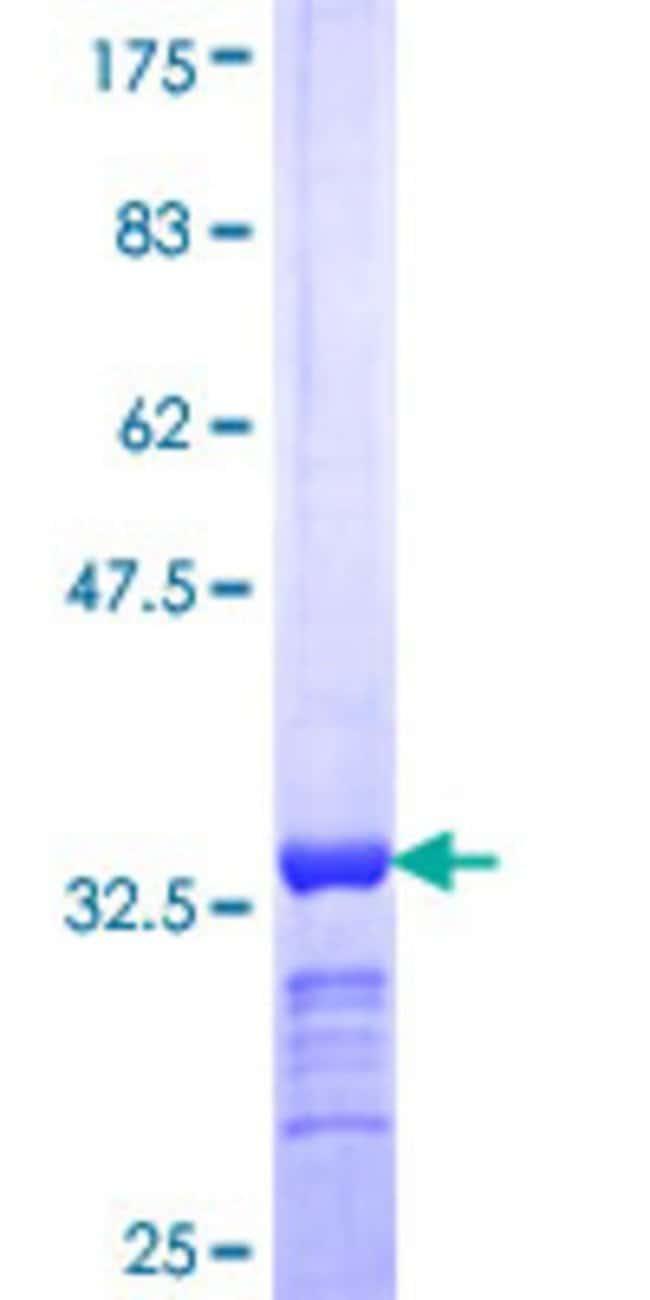 AbnovaHuman UBQLN2 Partial ORF (NP_038472, 555 a.a. - 624 a.a.) Recombinant