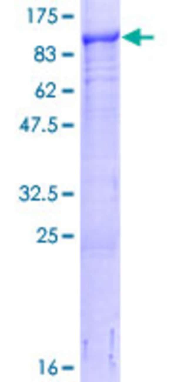 Abnova Human LMCD1 Full-length ORF (NP_055398.1, 1 a.a. - 365 a.a.) Recombinant