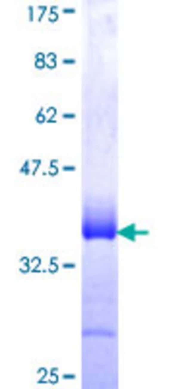 AbnovaHuman LMCD1 Partial ORF (NP_055398, 266 a.a. - 364 a.a.) Recombinant