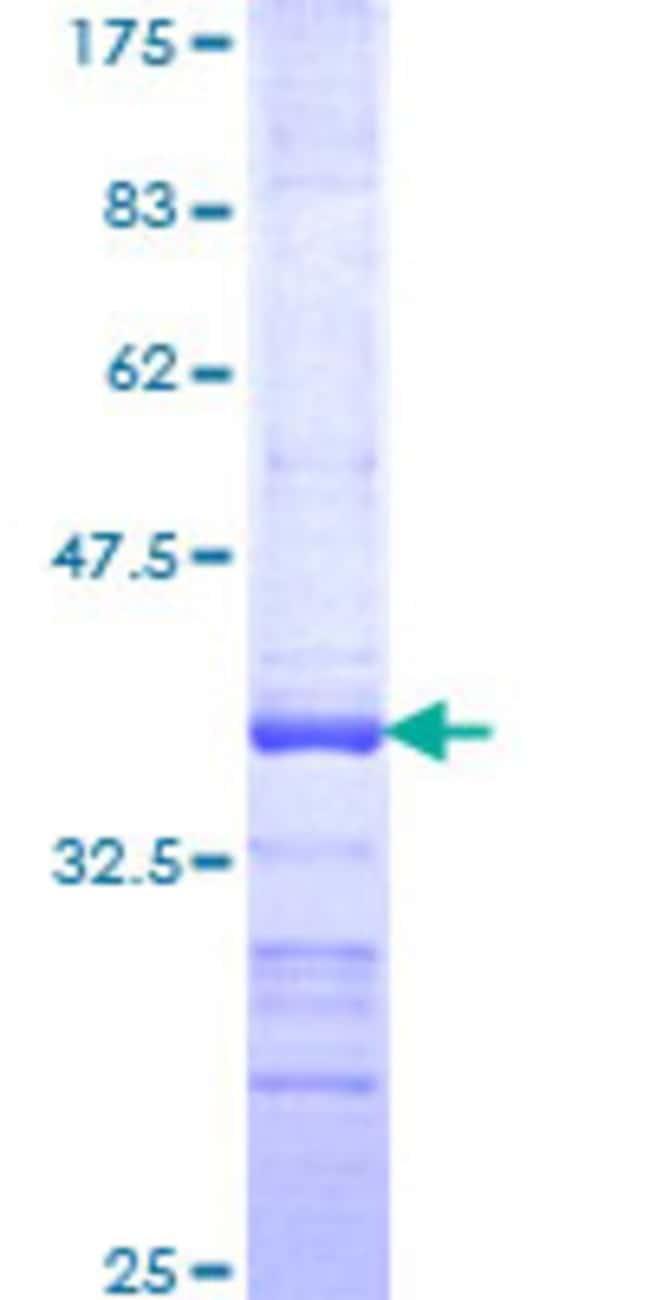 AbnovaHuman LGR6 Partial ORF (NP_067649, 403 a.a. - 496 a.a.) Recombinant