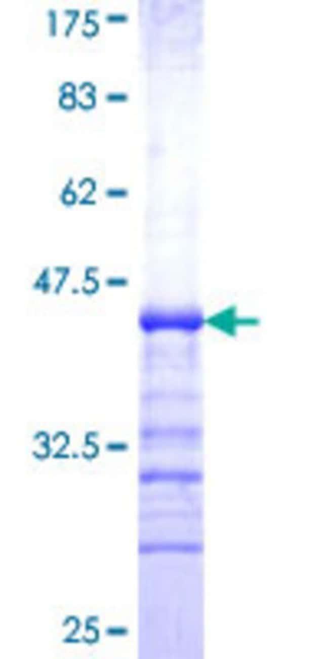 AbnovaHuman ERO1L Partial ORF (NP_055399, 90 a.a. - 178 a.a.) Recombinant
