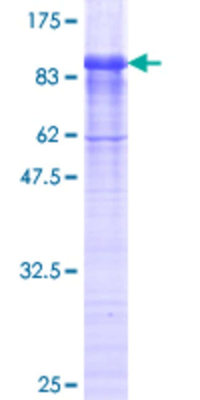 Abnova™Human EFEMP2 Full-length ORF (AAH10456.1, 26 a.a. - 443 a.a.) Recombinant Protein with GST-tag at N-terminal 10μg Abnova™Human EFEMP2 Full-length ORF (AAH10456.1, 26 a.a. - 443 a.a.) Recombinant Protein with GST-tag at N-terminal