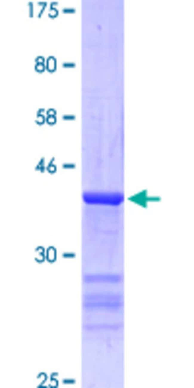Abnova™Human TBX21 Partial ORF (NP_037483, 400 a.a. - 535 a.a.) Recombinant Protein with GST-tag at N-terminal 25μg Abnova™Human TBX21 Partial ORF (NP_037483, 400 a.a. - 535 a.a.) Recombinant Protein with GST-tag at N-terminal