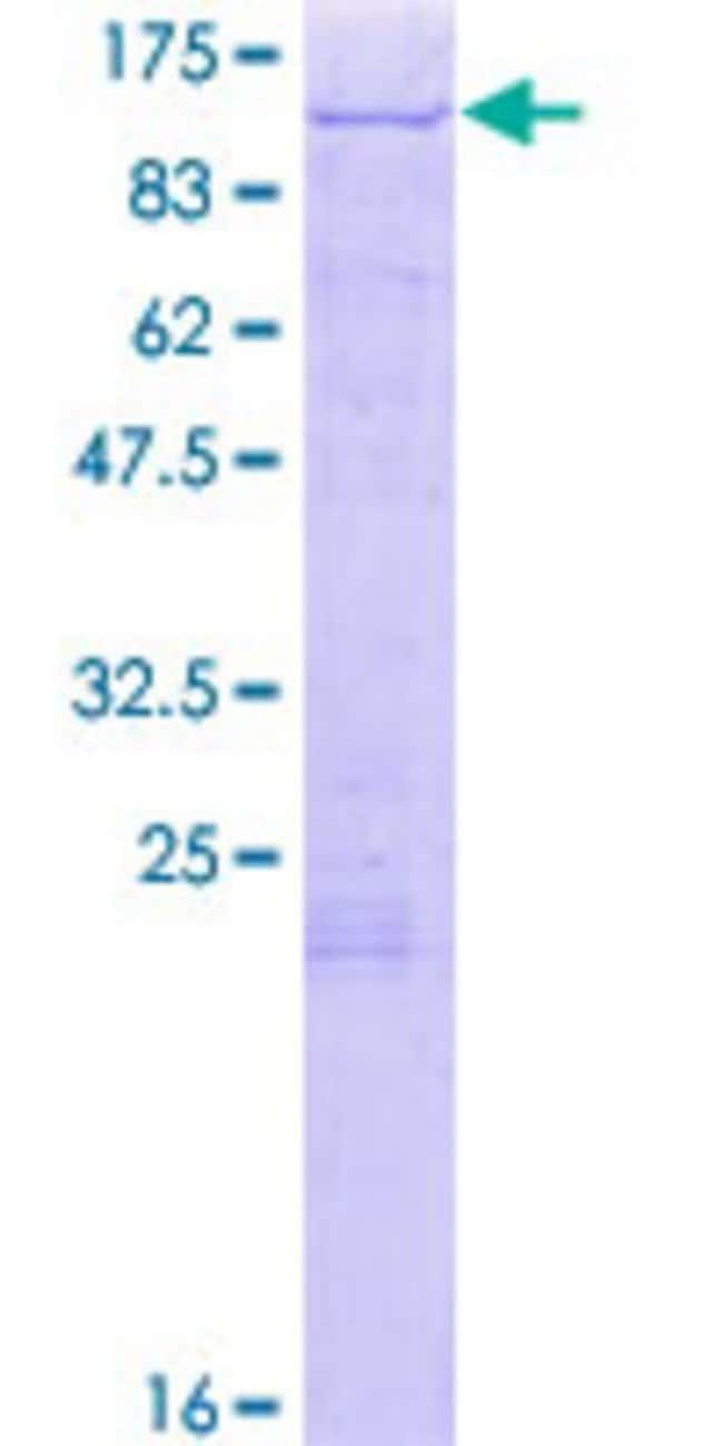 AbnovaHuman SH3KBP1 Full-length ORF (AAH15806.1, 1 a.a. - 665 a.a.) Recombinant
