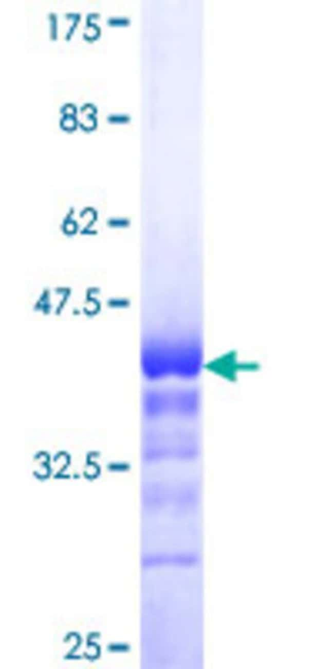 AbnovaHuman TLX3 Partial ORF (NP_066305, 192 a.a. - 291 a.a.) Recombinant