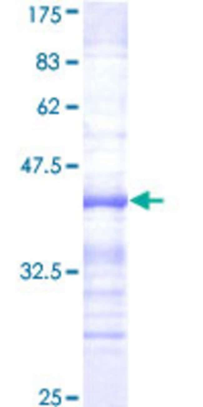 Abnova™Human HUNK Partial ORF (NP_055401, 615 a.a. - 714 a.a.) Recombinant Protein with GST-tag at N-terminal 25μg Abnova™Human HUNK Partial ORF (NP_055401, 615 a.a. - 714 a.a.) Recombinant Protein with GST-tag at N-terminal