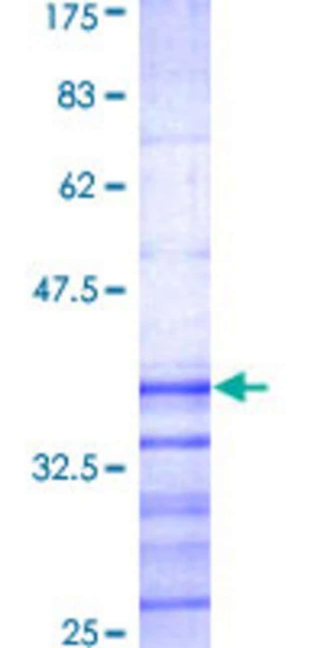 AbnovaHuman KCNIP2 Partial ORF (AAH34685, 1 a.a. - 100 a.a.) Recombinant