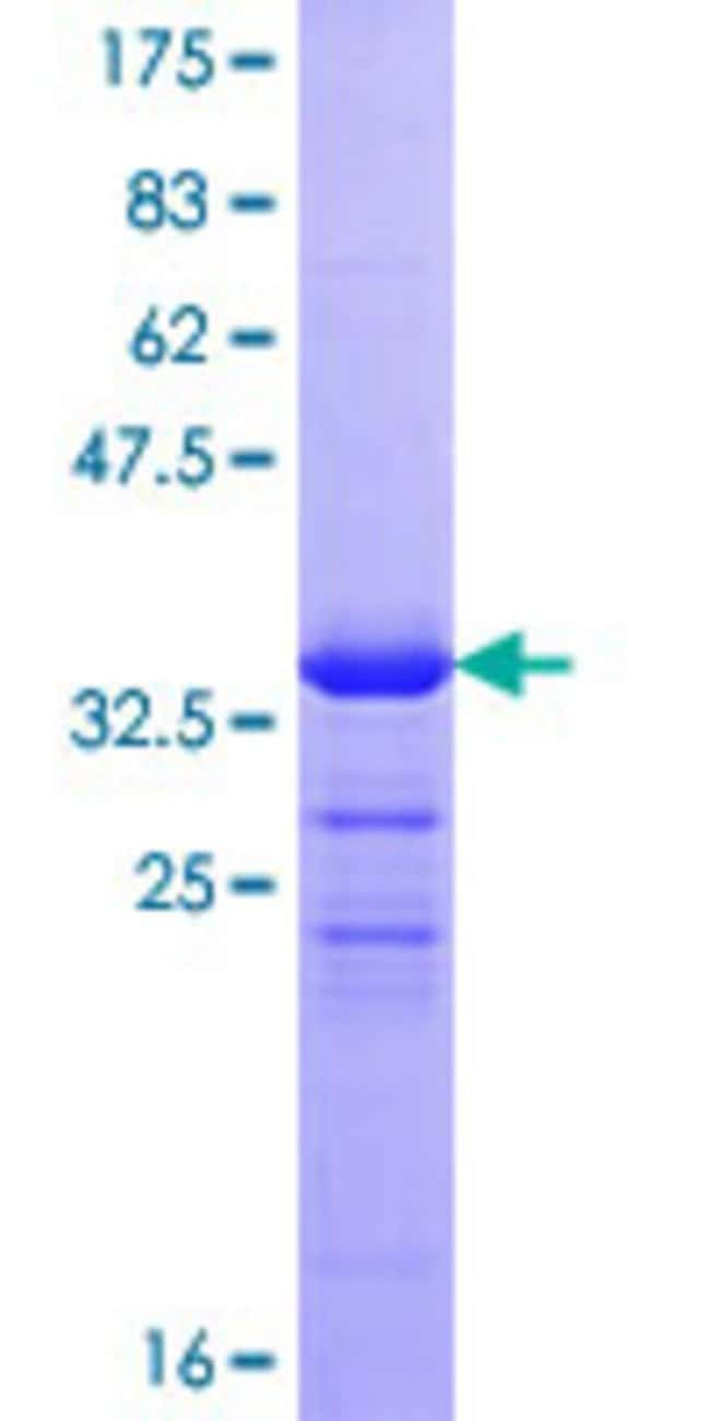 Abnova™Human ZNRD1 Full-length ORF (NP_055411.1, 1 a.a. - 126 a.a.) Recombinant Protein with GST-tag at N-terminal 10μg Abnova™Human ZNRD1 Full-length ORF (NP_055411.1, 1 a.a. - 126 a.a.) Recombinant Protein with GST-tag at N-terminal