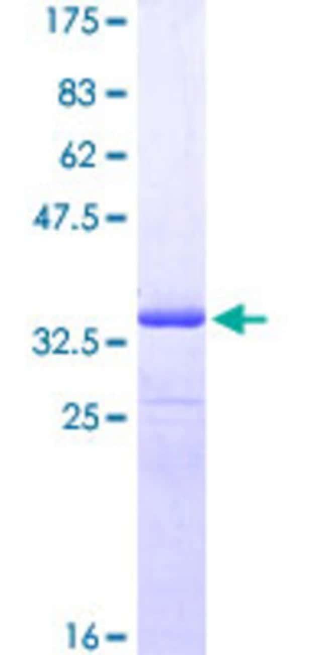 AbnovaHuman ZNRD1 Partial ORF (NP_055411, 24 a.a. - 126 a.a.) Recombinant