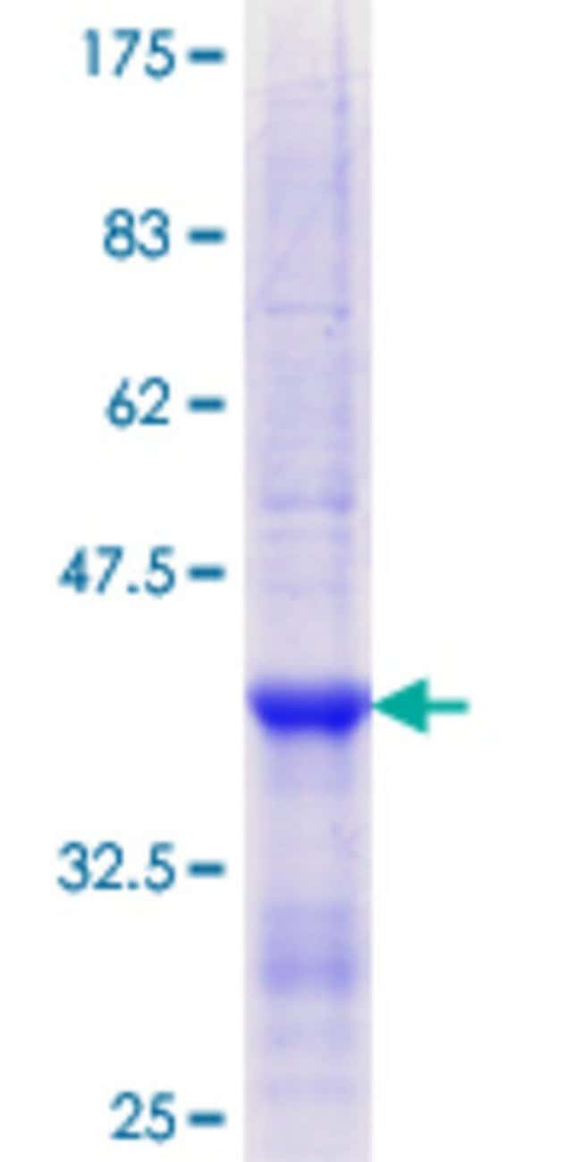 Abnova™Human CD209 Partial ORF (NP_066978.1, 271 a.a. - 380 a.a.) Recombinant Protein with GST-tag at N-terminal 10μg Abnova™Human CD209 Partial ORF (NP_066978.1, 271 a.a. - 380 a.a.) Recombinant Protein with GST-tag at N-terminal