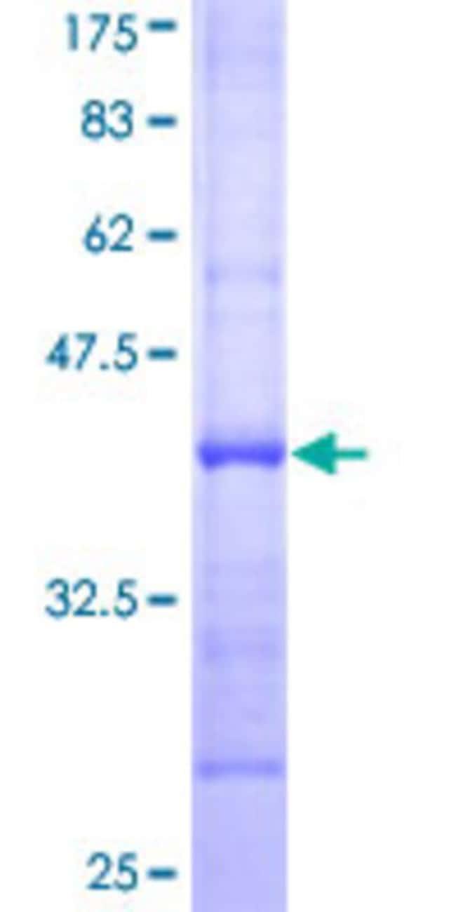 AbnovaHuman SOCS7 Partial ORF (NP_055413, 472 a.a. - 581 a.a.) Recombinant
