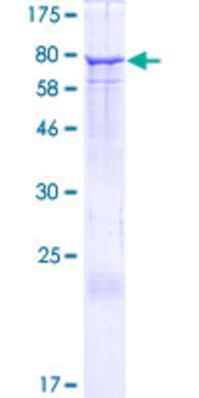 AbnovaHuman EHD2 Full-length ORF (NP_055416.2, 1 a.a. - 543 a.a.) Recombinant