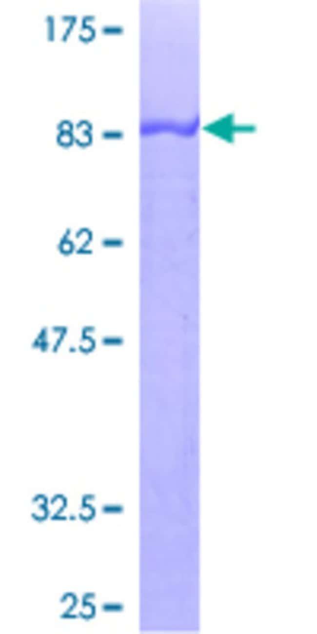 AbnovaHuman CRNN Full-length ORF (AAH30807, 1 a.a. - 495 a.a.) Recombinant