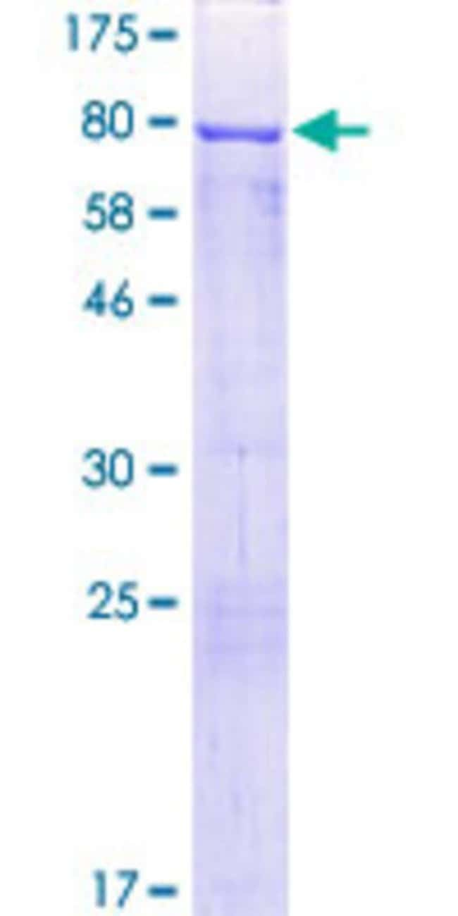 AbnovaHuman CRNN Full-length ORF (NP_057274.1, 1 a.a. - 495 a.a.) Recombinant