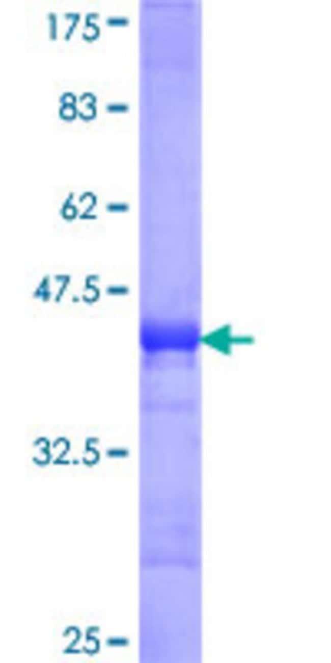 AbnovaHuman RRM2B Partial ORF (NP_056528, 3 a.a. - 84 a.a.) Recombinant