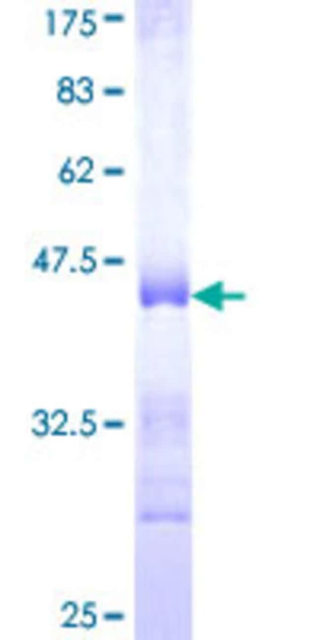 AbnovaHuman COL5A3 Partial ORF (NP_056534, 157 a.a. - 244 a.a.) Recombinant