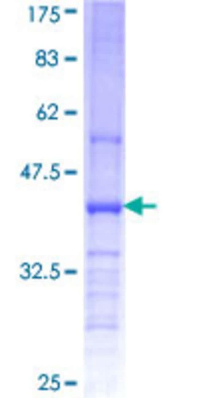 AbnovaHuman CHST11 Partial ORF (NP_060883, 230 a.a. - 337 a.a.) Recombinant