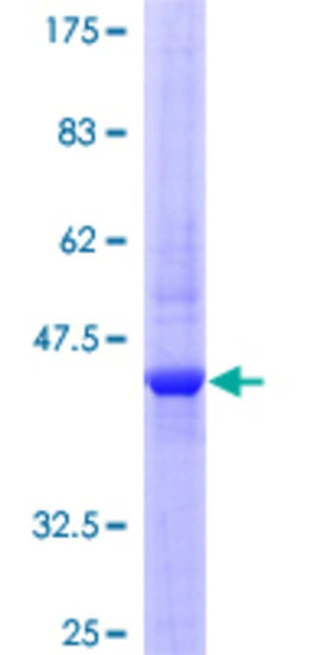 Abnova Human IL22 Full-length ORF (NP_065386.1, 1 a.a. - 179 a.a.) Recombinant
