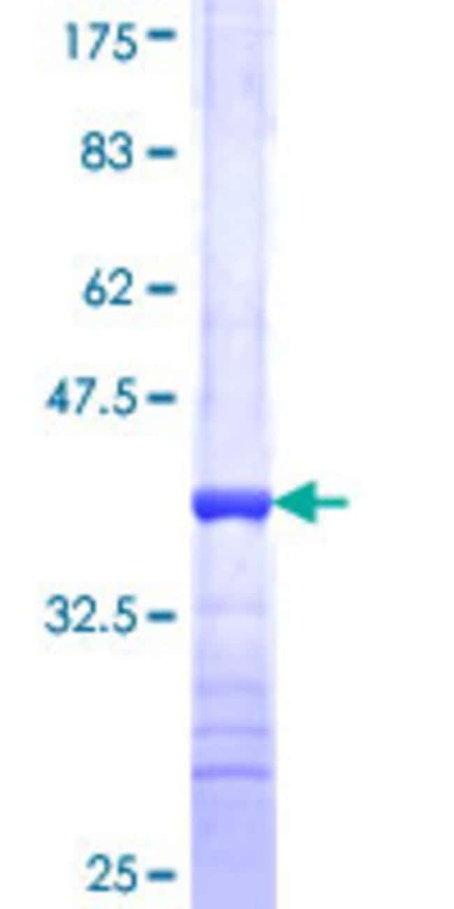 Abnova™Human IL22 Partial ORF (NP_065386, 80 a.a. - 179 a.a.) Recombinant Protein with GST-tag at N-terminal 25μg Abnova™Human IL22 Partial ORF (NP_065386, 80 a.a. - 179 a.a.) Recombinant Protein with GST-tag at N-terminal