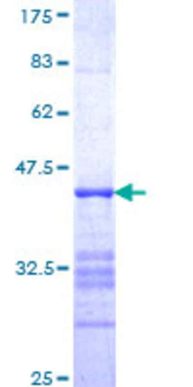 AbnovaHuman ITSN2 Partial ORF (NP_006268, 471 a.a. - 571 a.a.) Recombinant