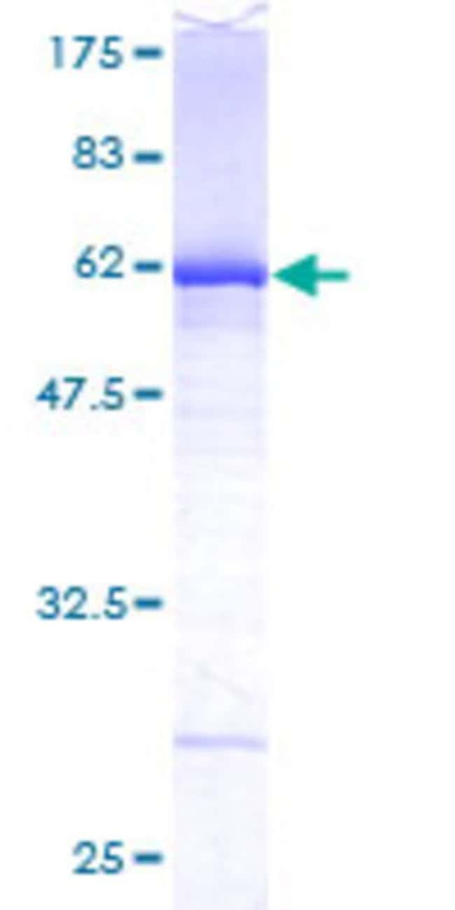 AbnovaHuman DEF6 Full-length ORF (AAH17504, 1 a.a. - 336 a.a.) Recombinant