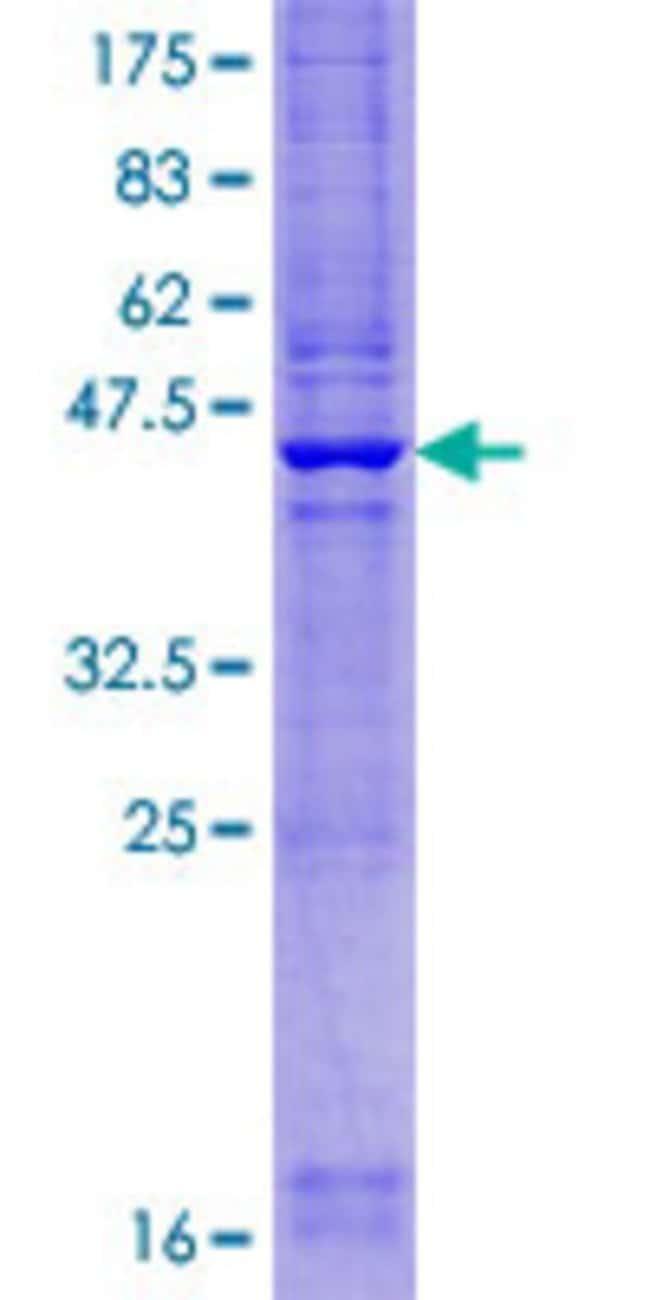 AbnovaHuman CYHR1 Full-length ORF (NP_116076.1, 1 a.a. - 192 a.a.) Recombinant