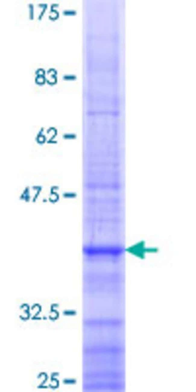 Abnova™Human ARHGEF4 Partial ORF (NP_056135, 581 a.a. - 690 a.a.) Recombinant Protein with GST-tag at N-terminal 25μg Abnova™Human ARHGEF4 Partial ORF (NP_056135, 581 a.a. - 690 a.a.) Recombinant Protein with GST-tag at N-terminal