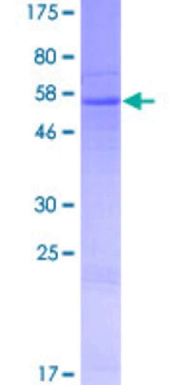 AbnovaHuman RDH8 Full-length ORF (AAI46480.1, 1 a.a. - 311 a.a.) Recombinant