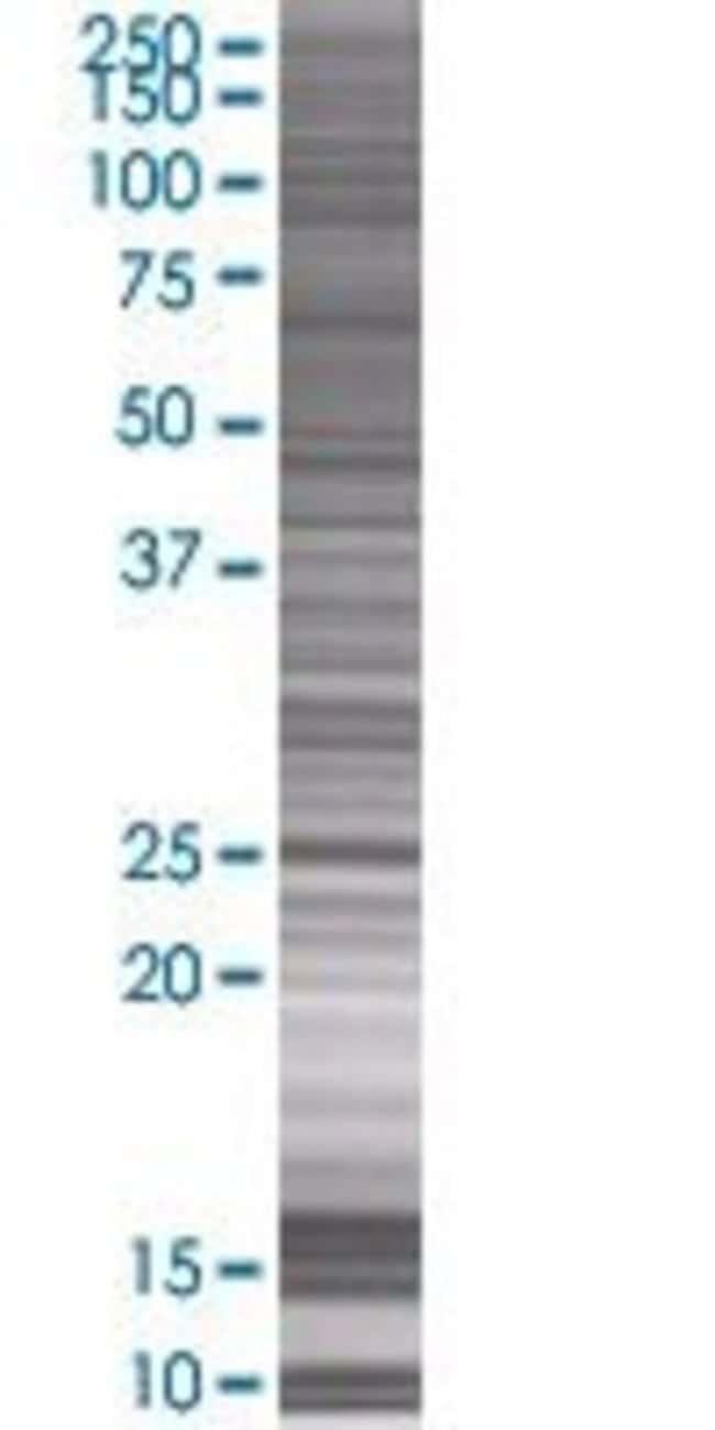 AbnovaAK3 293T Cell Transient Overexpression Lysate (Denatured) (T01) 100μL:Protein
