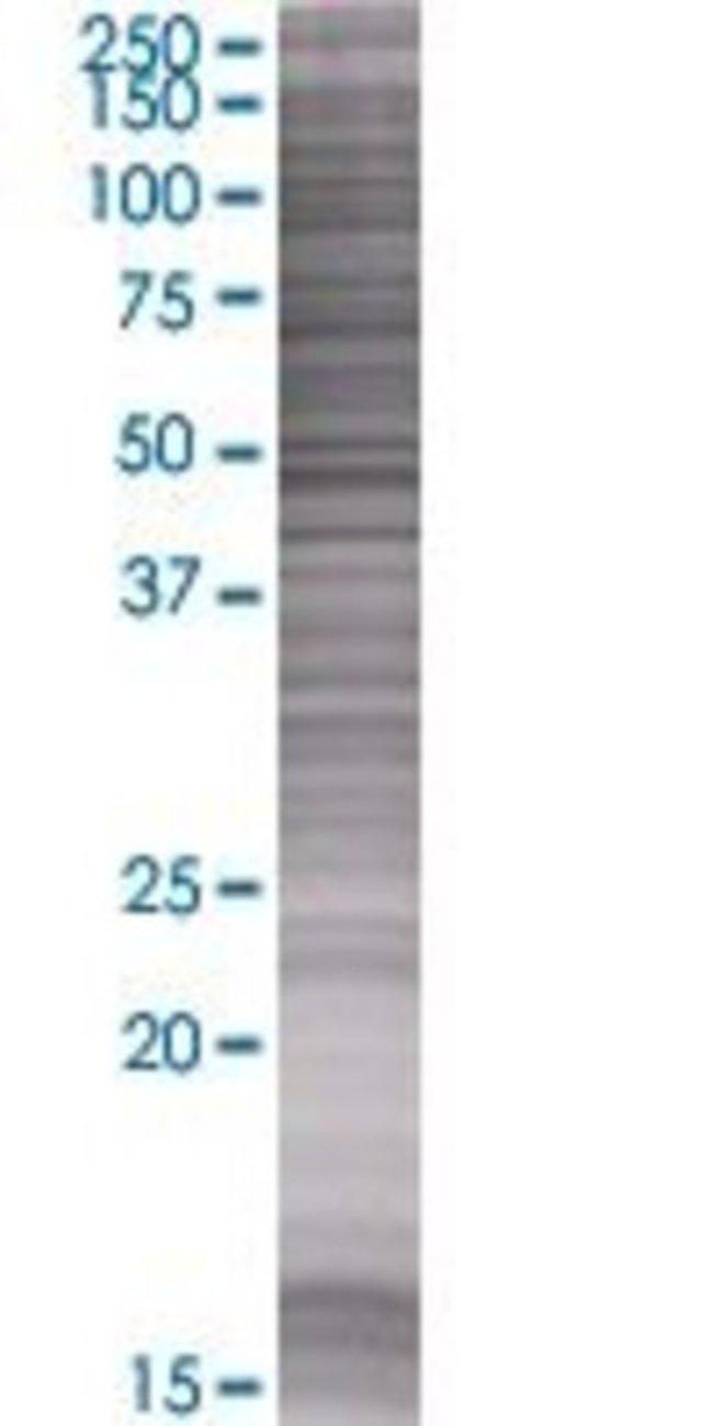Abnova HP1BP3 293T Cell Transient Overexpression Lysate (Denatured) (T01)