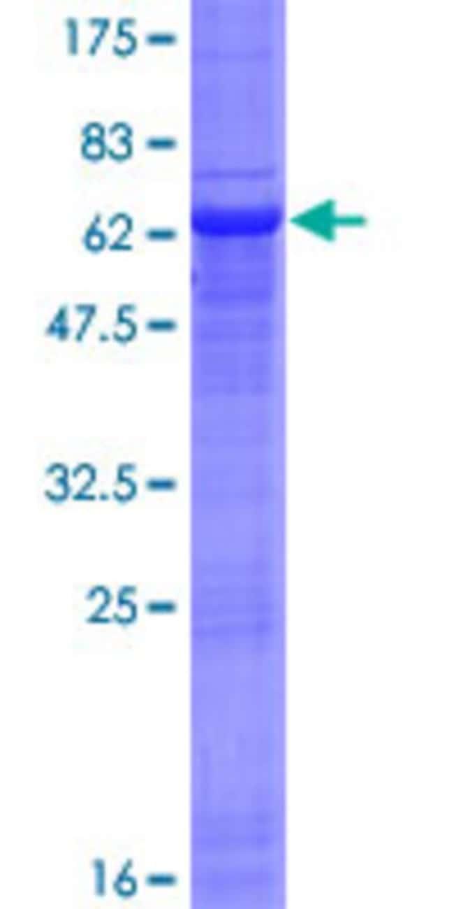 AbnovaHuman NSDHL Full-length ORF (NP_057006.1, 1 a.a. - 373 a.a.) Recombinant