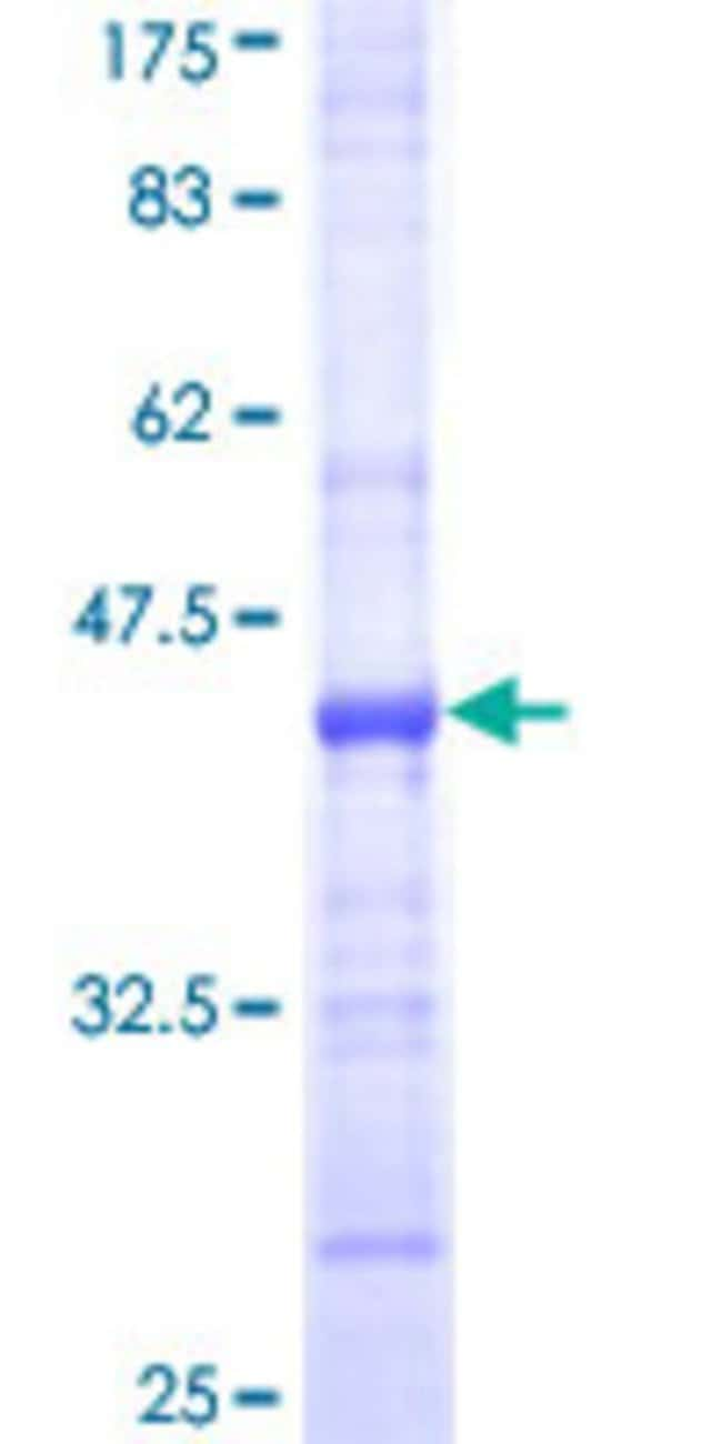 Abnova™Human NSDHL Partial ORF (NP_057006, 1 a.a. - 110 a.a.) Recombinant Protein with GST-tag at N-terminal 25μg Abnova™Human NSDHL Partial ORF (NP_057006, 1 a.a. - 110 a.a.) Recombinant Protein with GST-tag at N-terminal