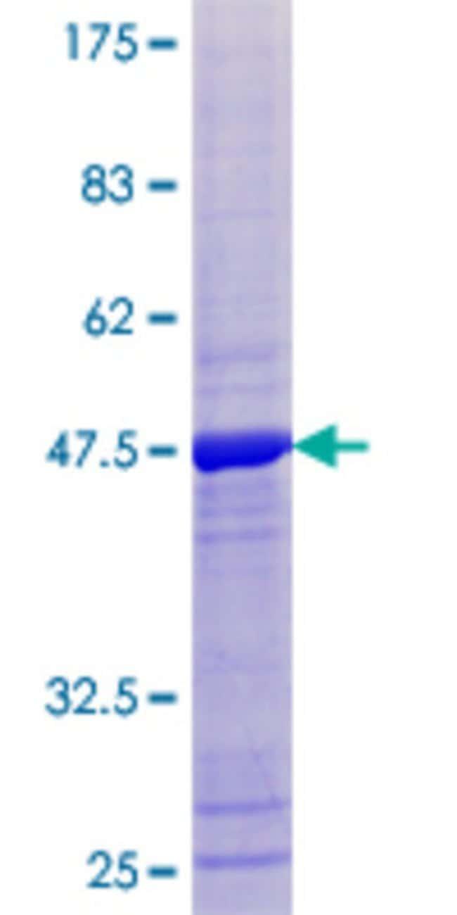 AbnovaHuman CGI-121 Full-length ORF (NP_057142.1, 1 a.a. - 175 a.a.) Recombinant