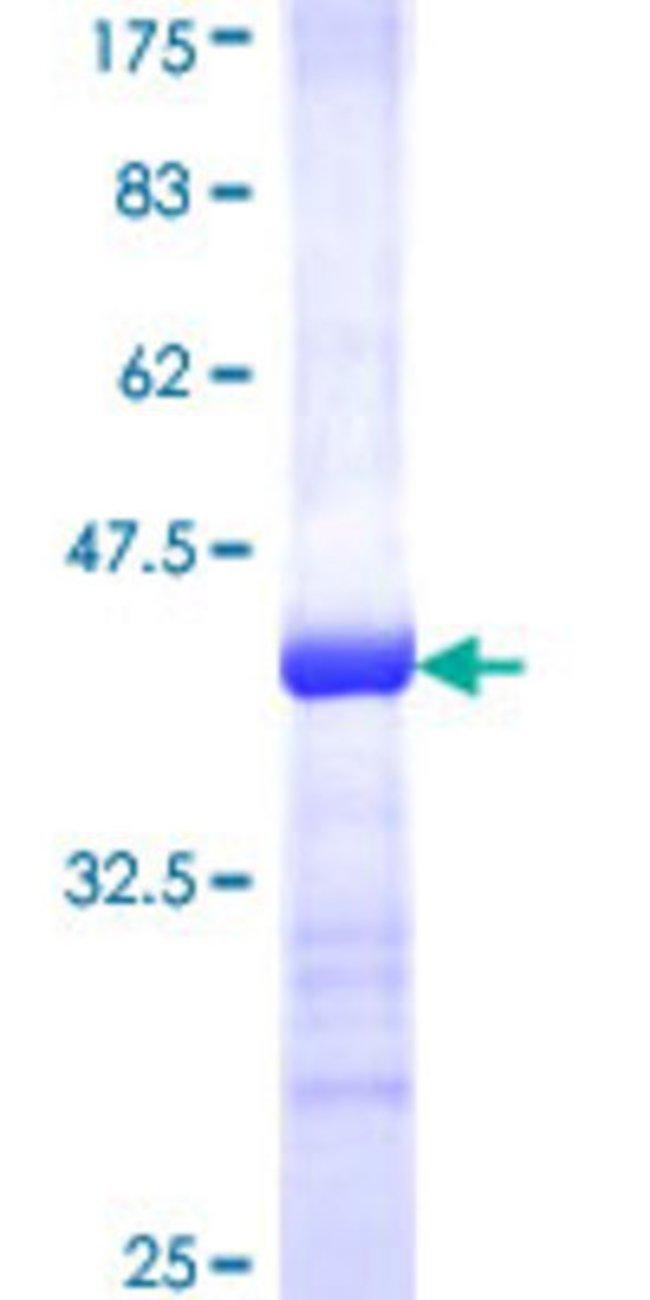 AbnovaHuman CGI-121 Partial ORF (NP_057142, 66 a.a. - 175 a.a.) Recombinant