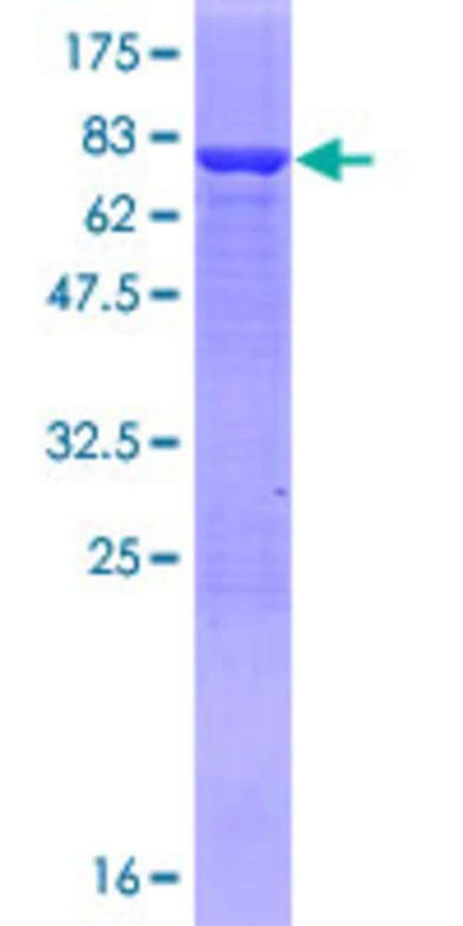AbnovaHuman AMDHD2 Full-length ORF (NP_057028.2, 1 a.a. - 439 a.a.) Recombinant