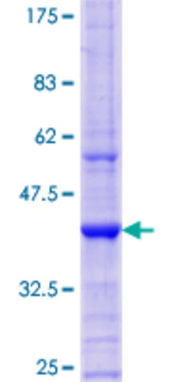 AbnovaHuman EXOSC3 Partial ORF (NP_057126.2, 176 a.a. - 274 a.a.) Recombinant