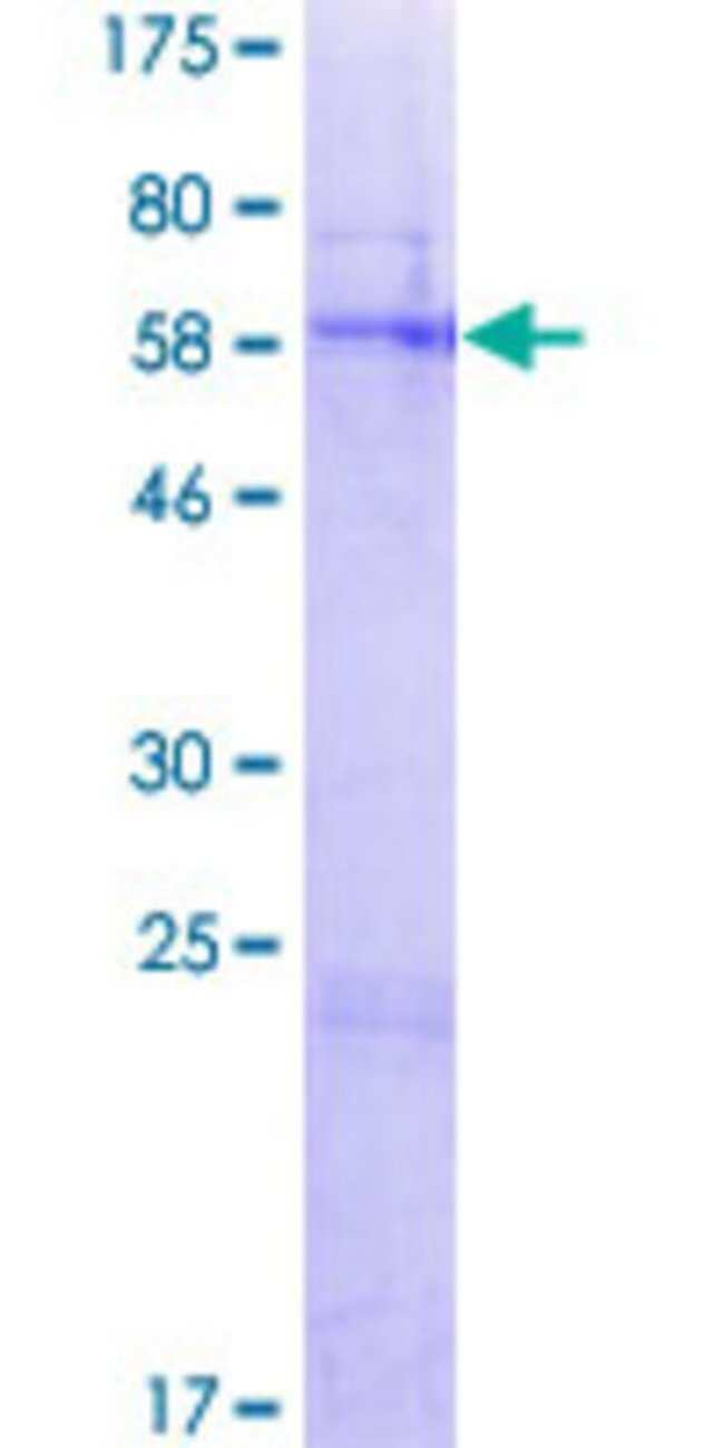 Abnova™Human FAHD2A Full-length ORF (AAH09403.1, 1 a.a. - 314 a.a.) Recombinant Protein with GST-tag at N-terminal 25μg Abnova™Human FAHD2A Full-length ORF (AAH09403.1, 1 a.a. - 314 a.a.) Recombinant Protein with GST-tag at N-terminal