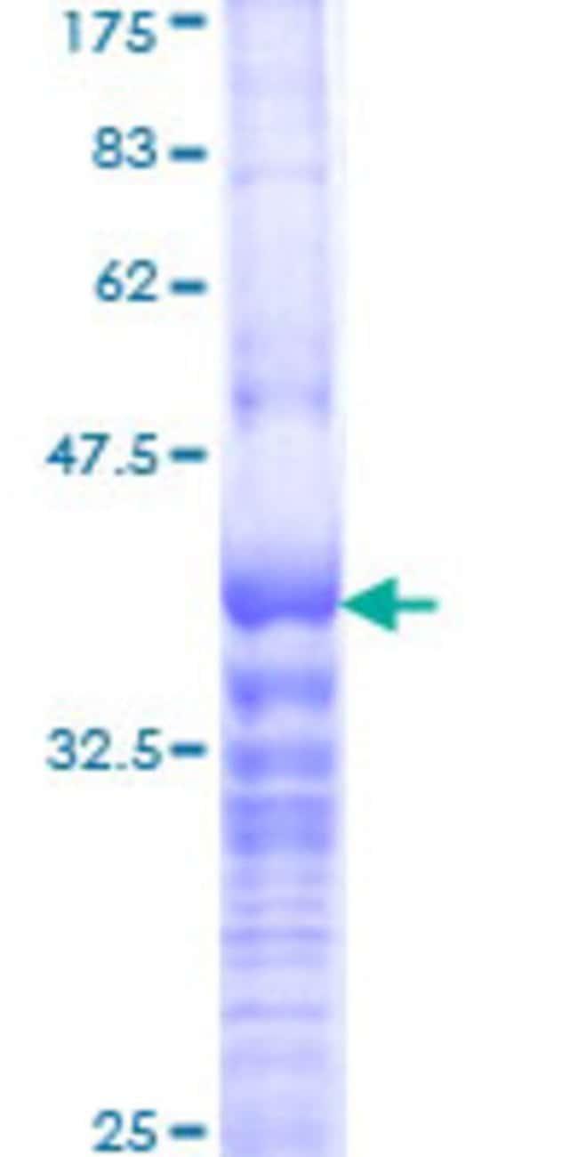 AbnovaHuman BOLA1 Partial ORF (NP_057158, 38 a.a. - 137 a.a.) Recombinant