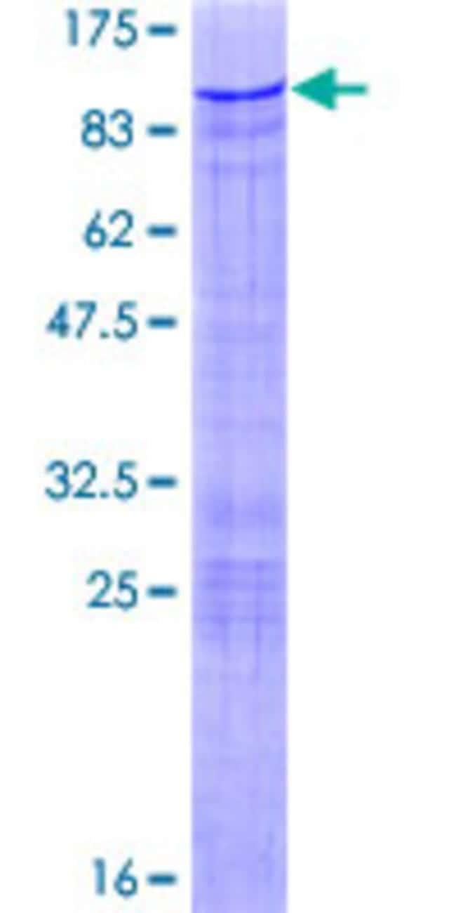 AbnovaHuman ZBTB7B Full-length ORF (AAH12070.1, 1 a.a. - 539 a.a.) Recombinant