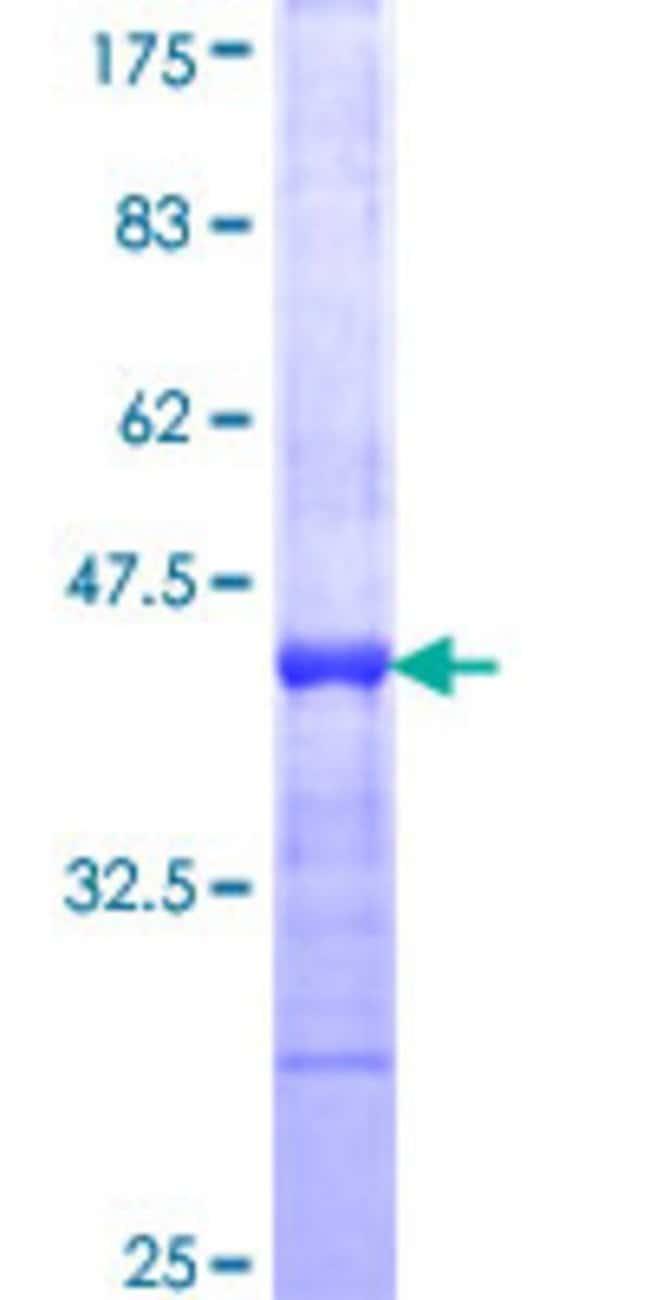 AbnovaHuman PI15 Partial ORF (NP_056970, 18 a.a. - 117 a.a.) Recombinant