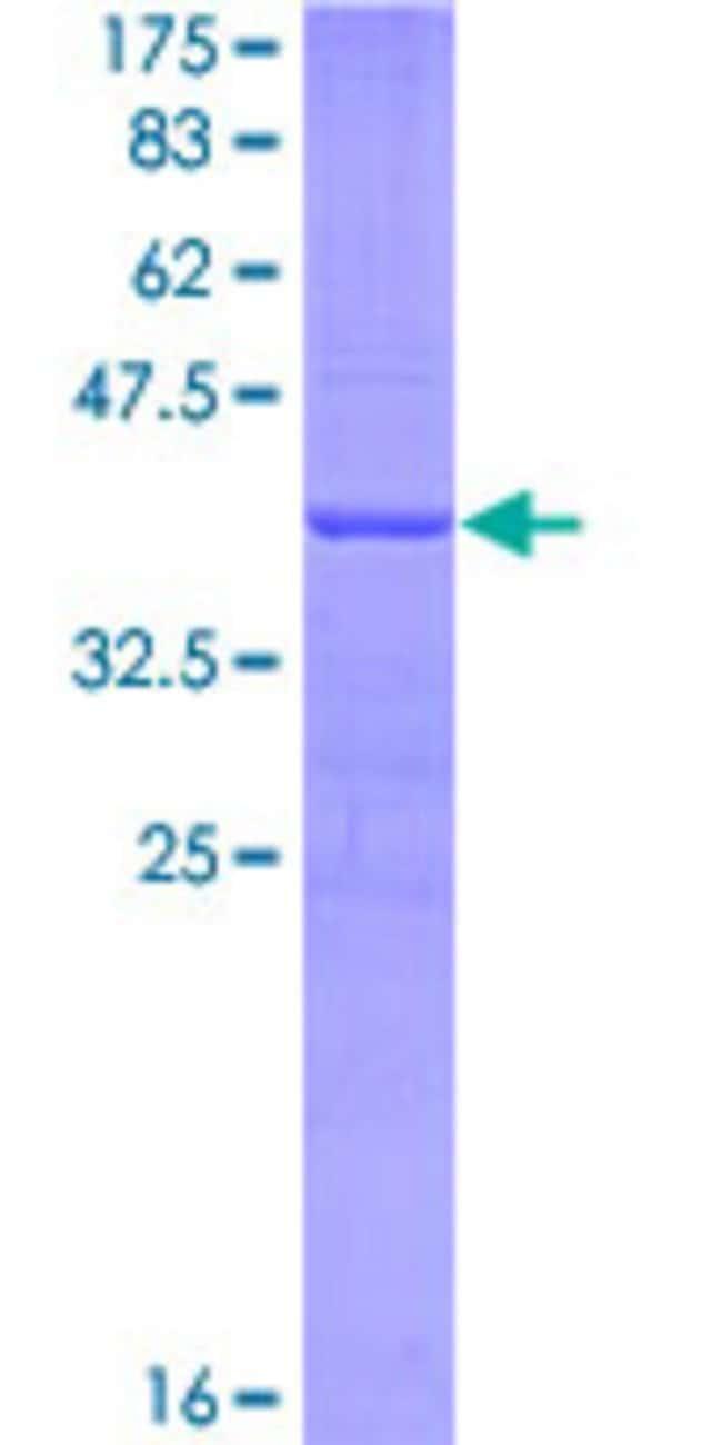 AbnovaHuman LAP3 Partial ORF (NP_056991, 420 a.a. - 519 a.a.) Recombinant