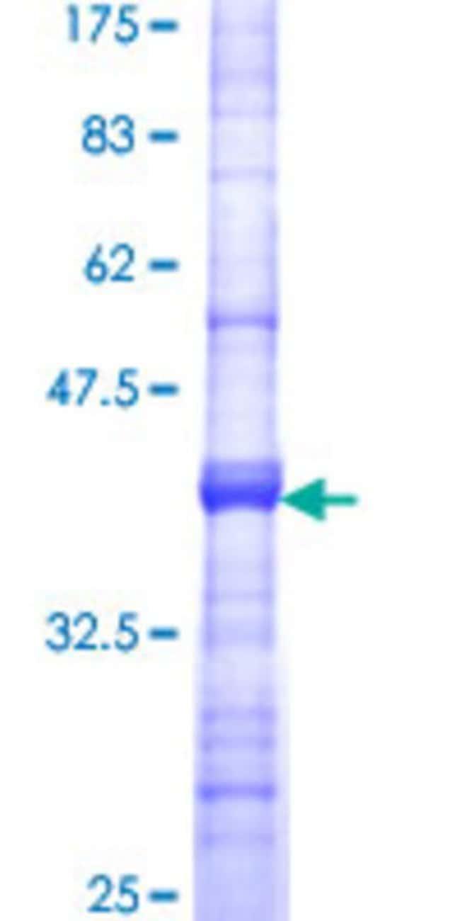 AbnovaHuman SPG3A Partial ORF (NP_056999, 1 a.a. - 100 a.a.) Recombinant