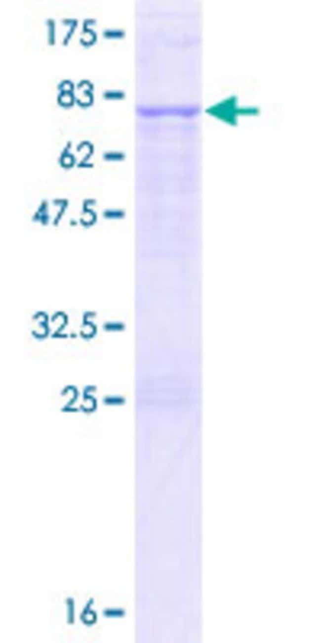 Abnova™Human YARS2 Full-length ORF (NP_001035526.1, 1 a.a. - 477 a.a.) Recombinant Protein with GST-tag at N-terminal 10μg Abnova™Human YARS2 Full-length ORF (NP_001035526.1, 1 a.a. - 477 a.a.) Recombinant Protein with GST-tag at N-terminal