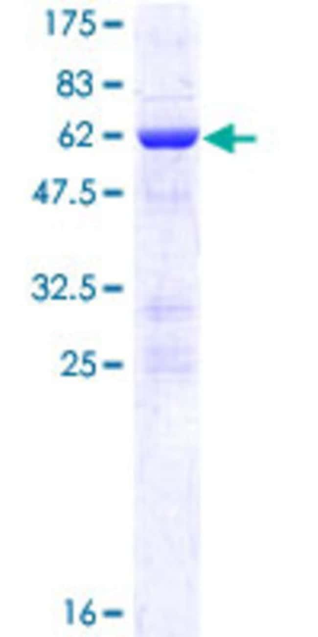 Abnova™ Human NOSIP Full-length ORF (NP_057037.1, 1 a.a. - 301 a.a.) Recombinant Protein with GST-tag at N-terminal 25μg Abnova™ Human NOSIP Full-length ORF (NP_057037.1, 1 a.a. - 301 a.a.) Recombinant Protein with GST-tag at N-terminal
