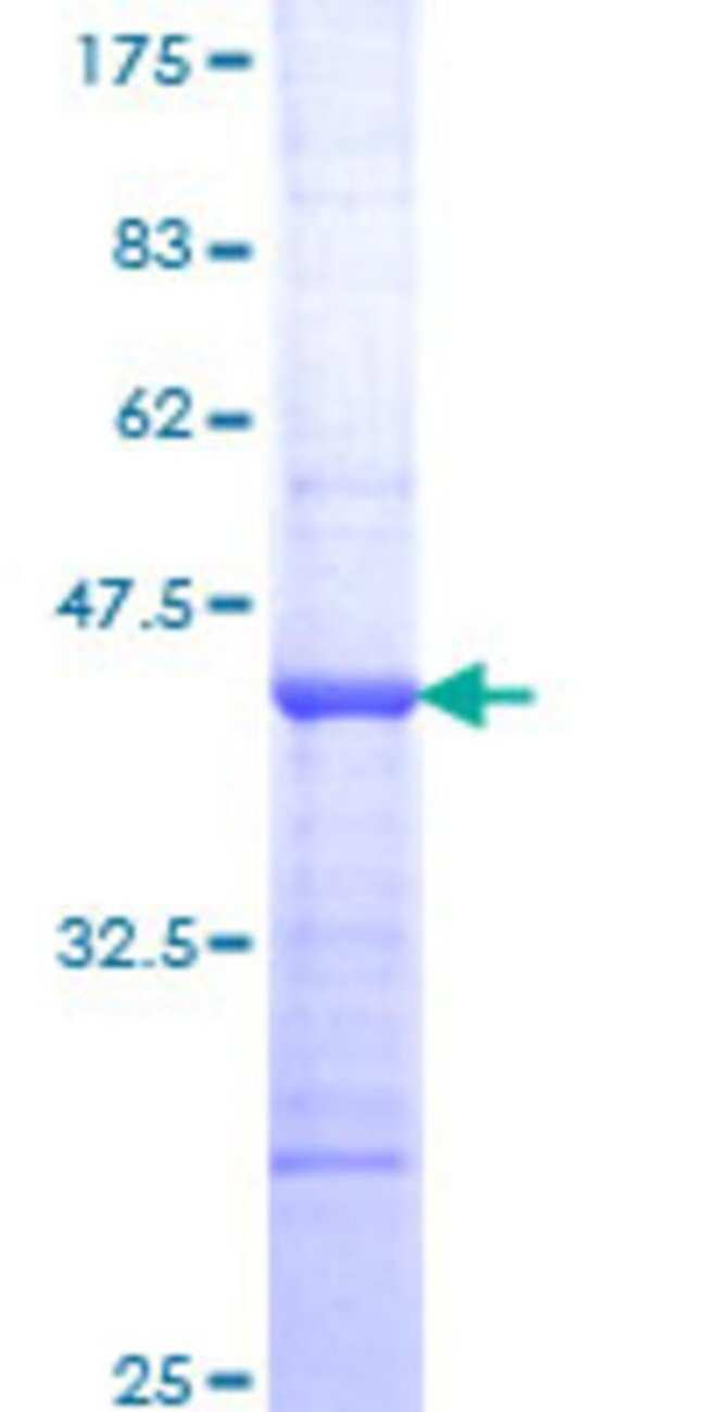 AbnovaHuman TNNI3K Partial ORF (NP_057062, 371 a.a. - 470 a.a.) Recombinant