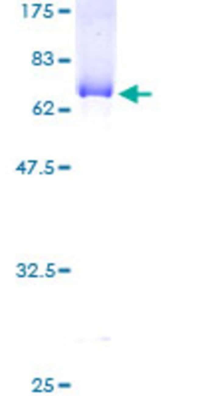 AbnovaHuman ABHD5 Full-length ORF (AAH21958, 1 a.a. - 349 a.a.) Recombinant