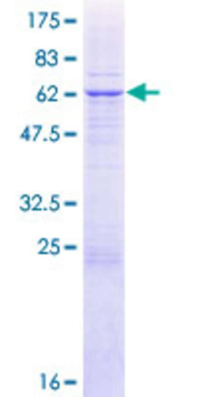 AbnovaHuman NDUFAF1 Full-length ORF (NP_057097.2, 1 a.a. - 327 a.a.) Recombinant