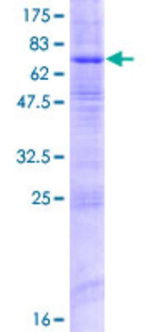 AbnovaHuman ZDHHC9 Full-length ORF (NP_001008223.1, 1 a.a. - 364 a.a.)